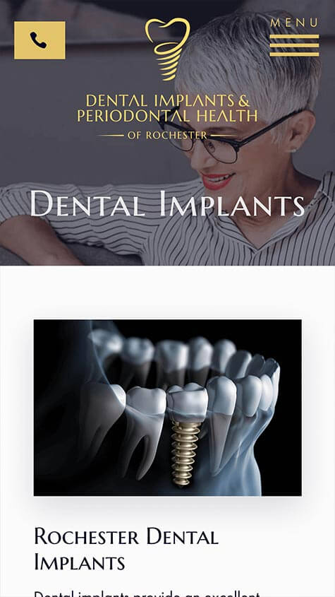 Dental Implants & Periodontal Health Responsive Design